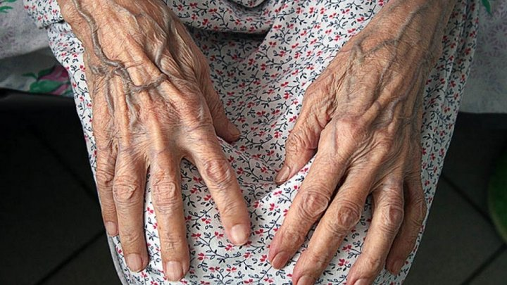 Слепую старушку с диабетом и эпилепсией лишили льгот и отправили на работу