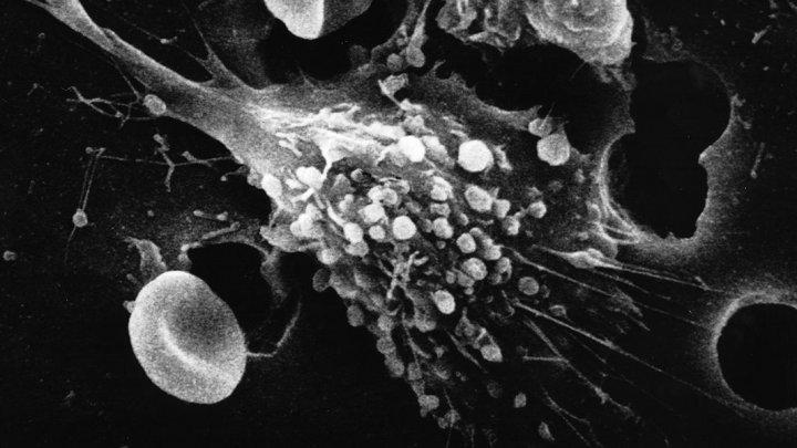 Молекулы-самоубийцы могут защитить нас от рака