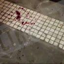 Родственница раненого в Мытищах рассказала о том, что видела с балкона