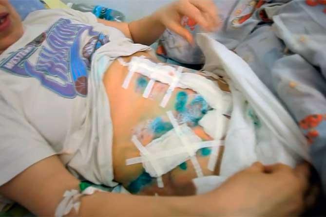 В Тольятти раненая женщина выбежала на улицу