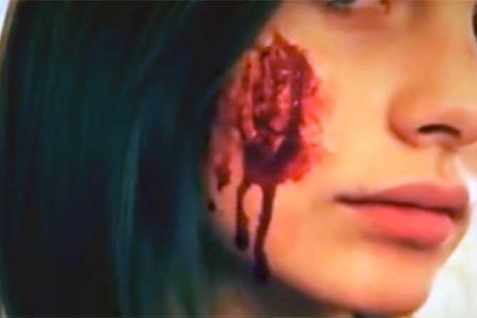 Полученный шрам на лице 22-летней девушки могут квалифицировать как обезображивание