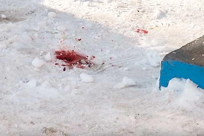 В Тольятти молодой человек, упавший с 16 этажа, госпитализирован в реанимацию