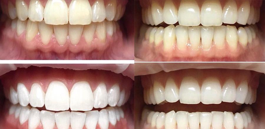 Современное отбеливание зубом Zoom 4